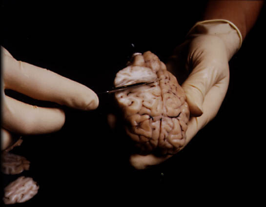 Sheep Brain Dissection The Anatomy Of Memory